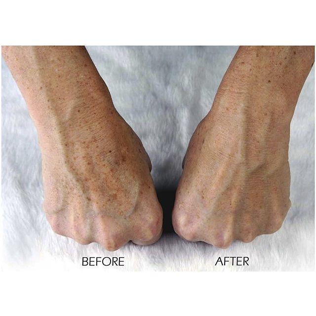 La microdermabrasion à domicile Atténue rides, cicatrices et tâches Juste 5 min, 2 fois par semaine Résultats prouvés cliniquement